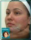 cover image - Back to Basics: Camouflage Makeup  (Video & Step-by-Step PDF)